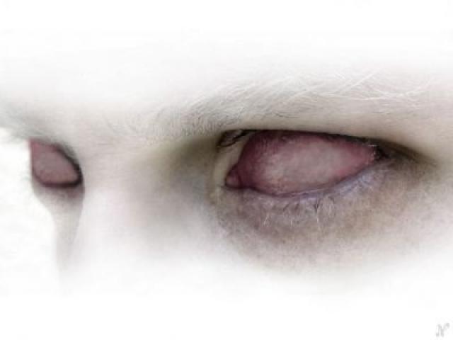 20110419192653-ceguera.jpg